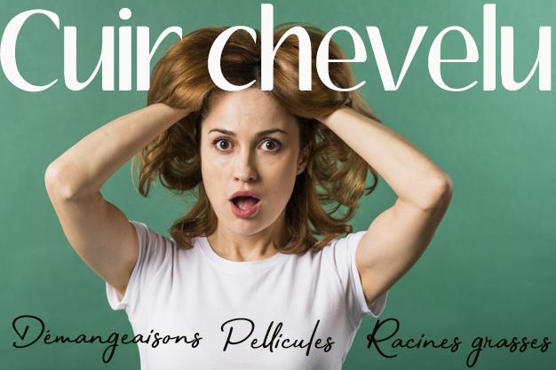 #CUIRCHEVELU #pellicule #démangeaisons #soincheveu #racinesgrasses