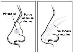 nose-french